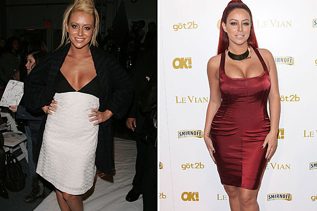 Aubrey ODay Before and After Plastic Surgery