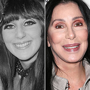 Cher Plastic Surgery Pictures
