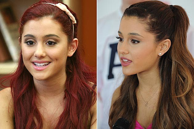 Ariana Grande Before And After Nose Job Ariana Grande Plastic ...