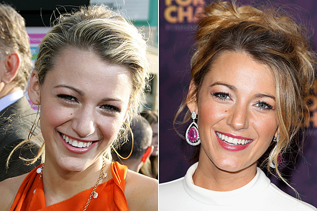 Blake Lively Nose Job Before And After HOLLYWOOD - MAY 31: Actress Blake Lively arrives at the premiere of 'The Sisterhood of the Traveling Pants' at The Grauman's Chinese Theatre on May 31, 2005 in Hollywood, California. (Photo by Frazer Harrison/Getty Images) / LONDON, ENGLAND - JUNE 01: Blake Lively poses backstage in the media room at the 'Chime For Change: The Sound Of Change Live' Concert at Twickenham Stadium on June 1, 2013 in London, England. Chime For Change is a global campaign for girls' and women's empowerment founded by Gucci with a founding committee comprised of Gucci Creative Director Frida Giannini, Salma Hayek Pinault and Beyonce Knowles-Carter. (Photo by Tim P. Whitby/Getty Images for Gucci)