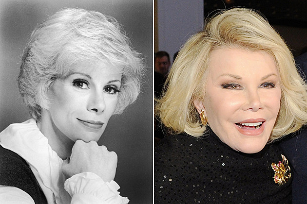joan-rivers-nose-job-before-and-after Joan Rivers nose job before and after Headshot portrait of American comedian Joan Rivers leaning her face against her fist, 1960s. (Photo by Hulton Archive/Getty Images) / NEW YORK, NY - OCTOBER 29: (L-R) TV personality Joan Rivers, Karl Wellner and Inside Edition host Deborah Norville attend a celebration of 25 Years of Inside Edition at Park Central New York on October 29, 2013 in New York City. (Photo by Bryan Bedder/Getty Images for Inside Edition)