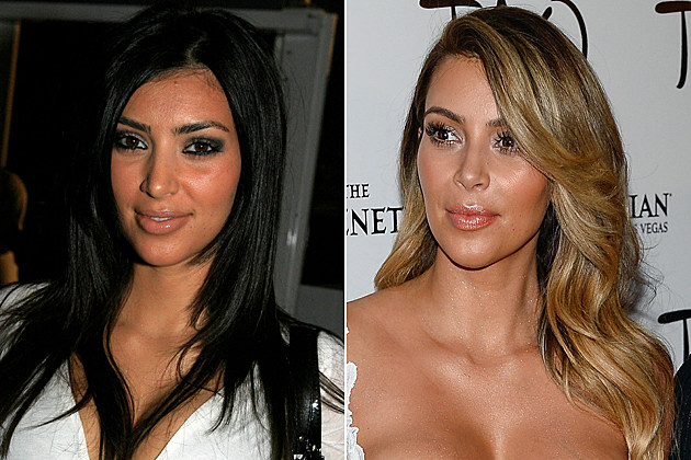 kim-kardashian-nose-job-before-after Kim Kardashian nose job before and after NEW YORK - SEPTEMBER 12: Kimberly Kardashian poses in the lobby during Olympus Fashion Week in Bryant Park September 12, 2006 in New York City. (Photo by Katy Winn/Getty Images for IMG) / LAS VEGAS, NV - OCTOBER 26: Television personalities Kim Kardashian (L) and Kourtney Kardashian arrive at the Tao Nightclub at The Venetian Las Vegas to celebrate Kim Kardashian's 33rd birthday on October 26, 2013 in Las Vegas, Nevada. (Photo by Ethan Miller/Getty Images)