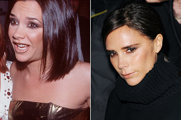 -nose-job-before-and-after Victoria Beckham nose job before and after ...