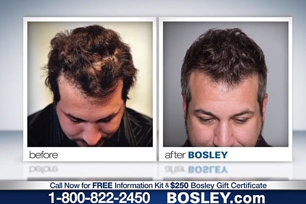 Fatone Bosley Before + After